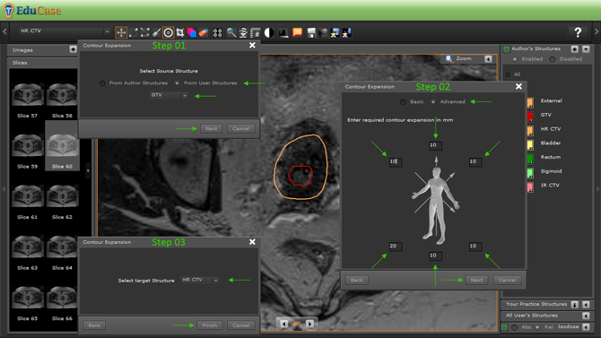 EduCase, Features, Contouring Tools, Expansion Tools for DICOM contours