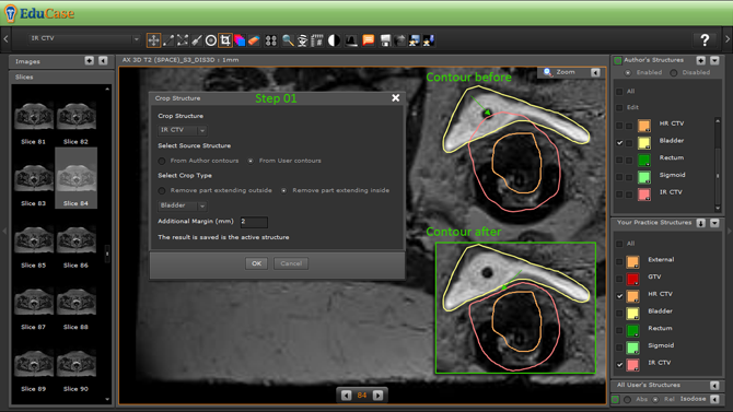 EduCase, Features, Contouring Tools, Cropping Tools for DICOM contours