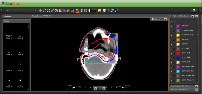 EduCase, Features, Contouring Tools, Magnifying Tools for DICOM images