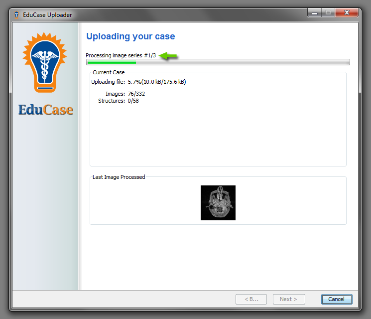 EduCase Features Uploader Tool Uploading DICOM data