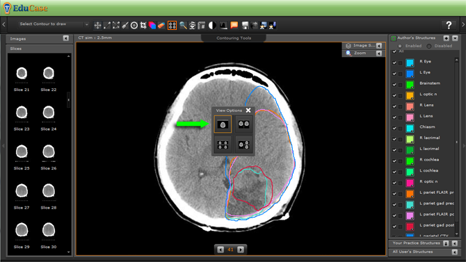 EduCase, ContouringTools, ViewTools, 1 Window DICOM View