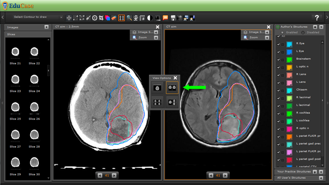EduCase, ContouringTools, ViewTools, 2 Window DICOM View