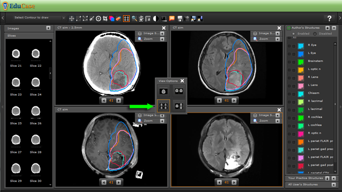 EduCase, ContouringTools, ViewTools, 4 Window DICOM View