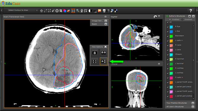 EduCase, ContouringTools, ViewTools, Orthoganal Window DICOM View